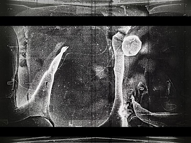 Ghumbaz-Ho-FF-X-ray-Age-flm-1-1000