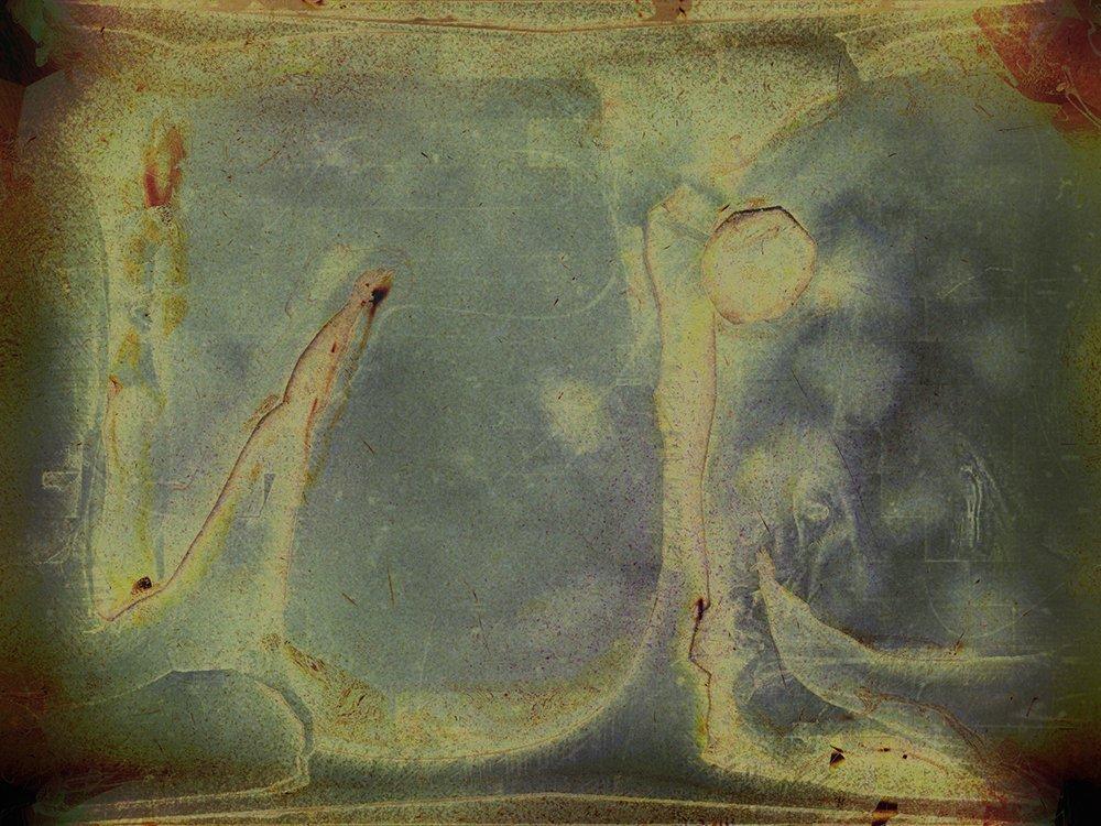 Ghumbaz-Ho-FF-X-ray-Artmatic-1-1000.jpg